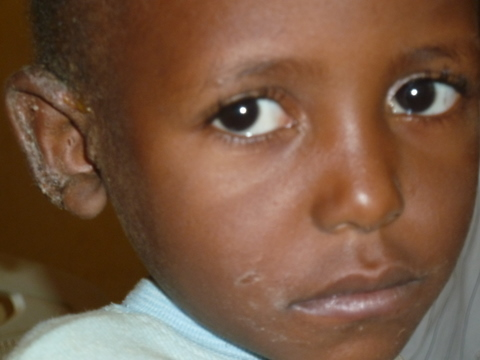 Homeopathy in Africa - A Day in the Clinic 3