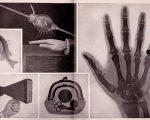 X-rays1