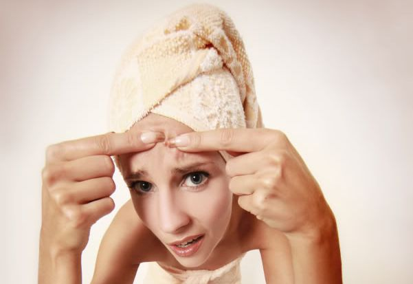 Top 10 Remedies for Acne 2