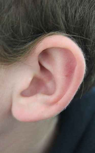 Homeopathic Treatment for Ear Infections Better than Antibiotics 1