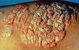 News/psoriasis Treatment