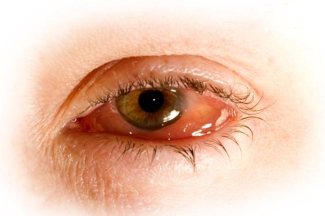 Gialuronovaya el ácido bajo los ojos los hinchazones