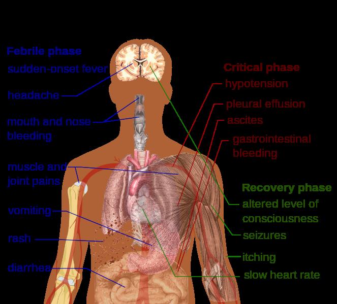 Denguefeversymptoms_zpsa1442cff