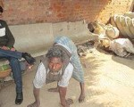 Miracle homoeopathy drug brings hope for leprosy patients 4