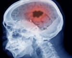 Homeopathy and Brain Tumours 3