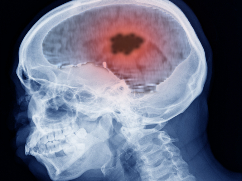 Homeopathy and Brain Tumours 4