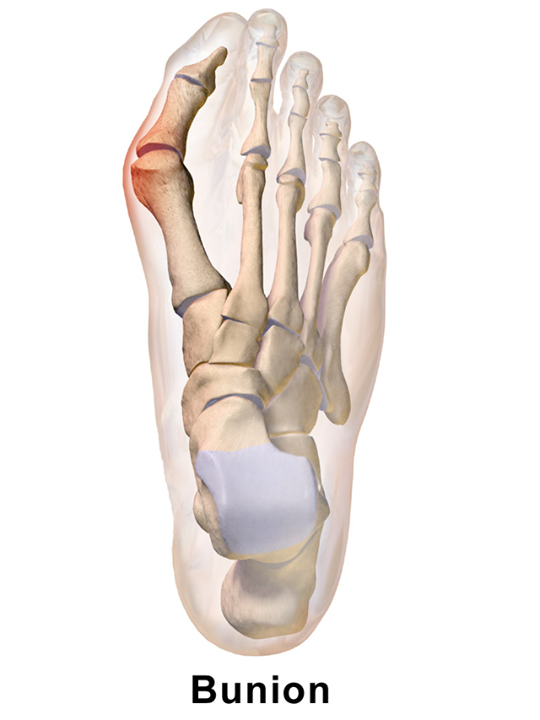 STUDY - Homeopathic Arnica compared to a NSAID following bunion surgery 4