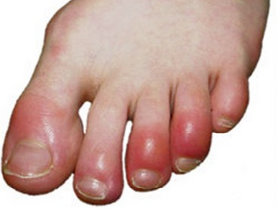 5 Best Remedies for Chilblains