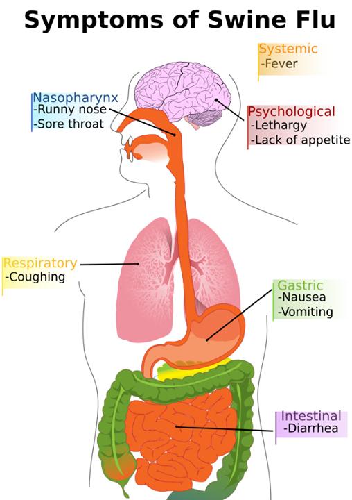 Homeopathy used for Swine flu 5