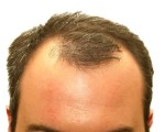 Remedies for Hair Loss 1