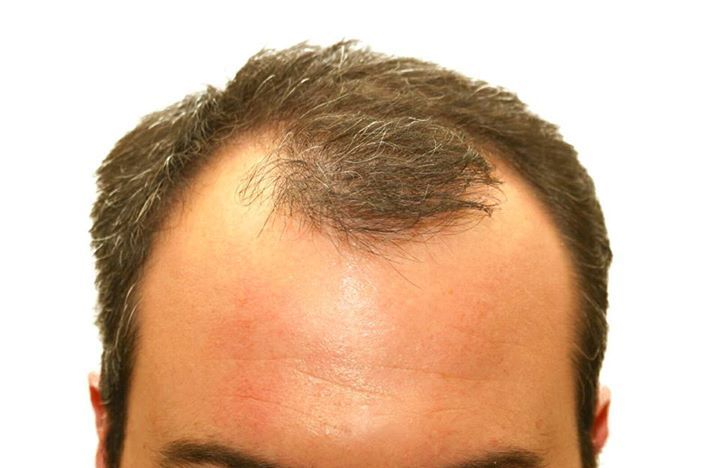 Remedies for Hair Loss 5