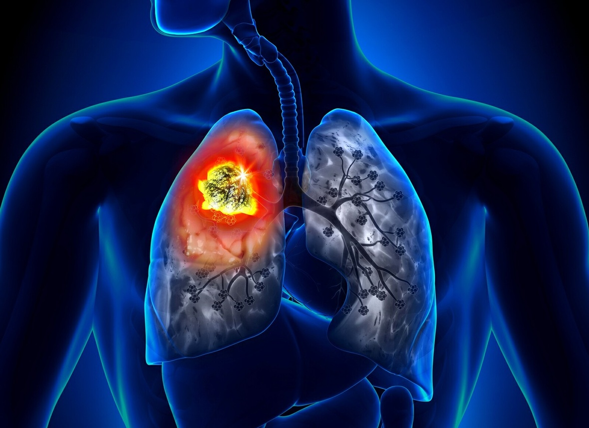 Study: Lung cancer cells commit suicide with homeopathy 5