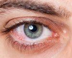 Pink eye no more 3