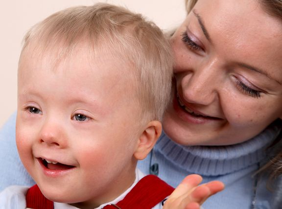 Homeopathy in Down Syndrome 7