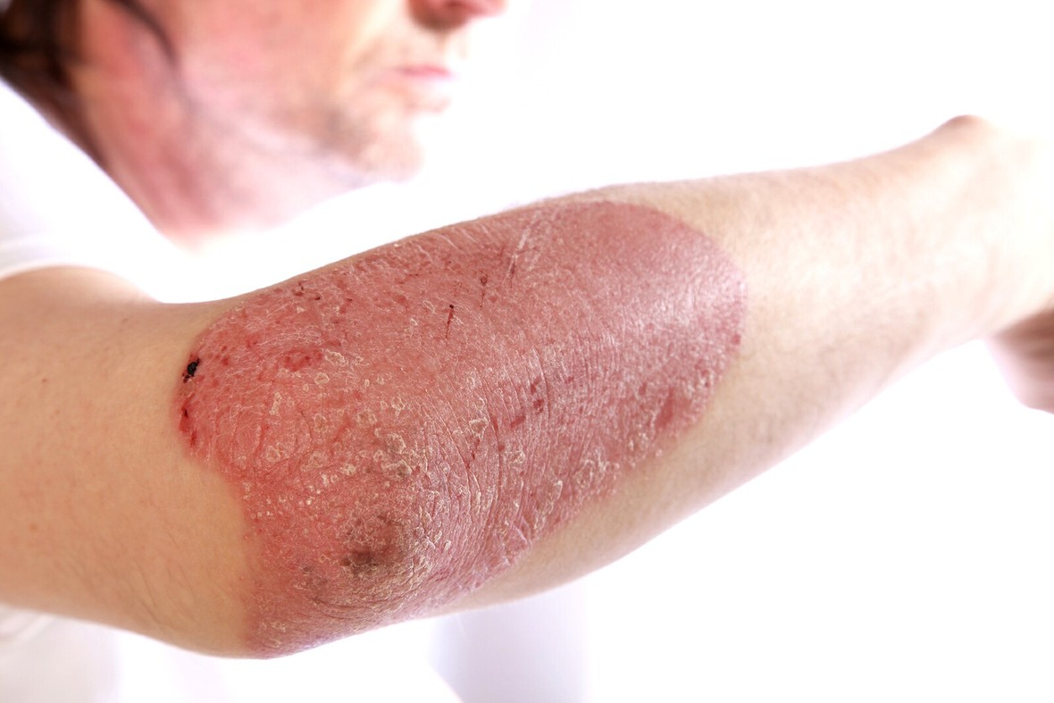 Homeopathy for Psoriasis 4