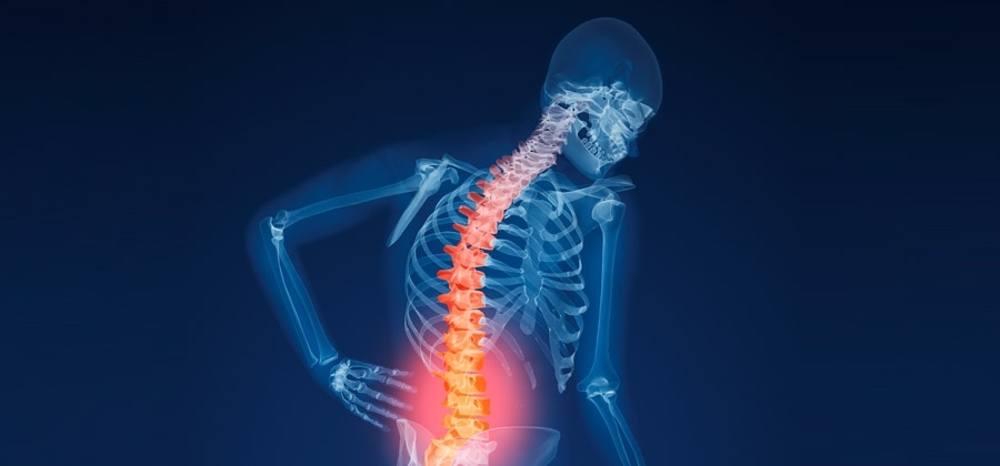 Homeopathy for osteoporosis 4