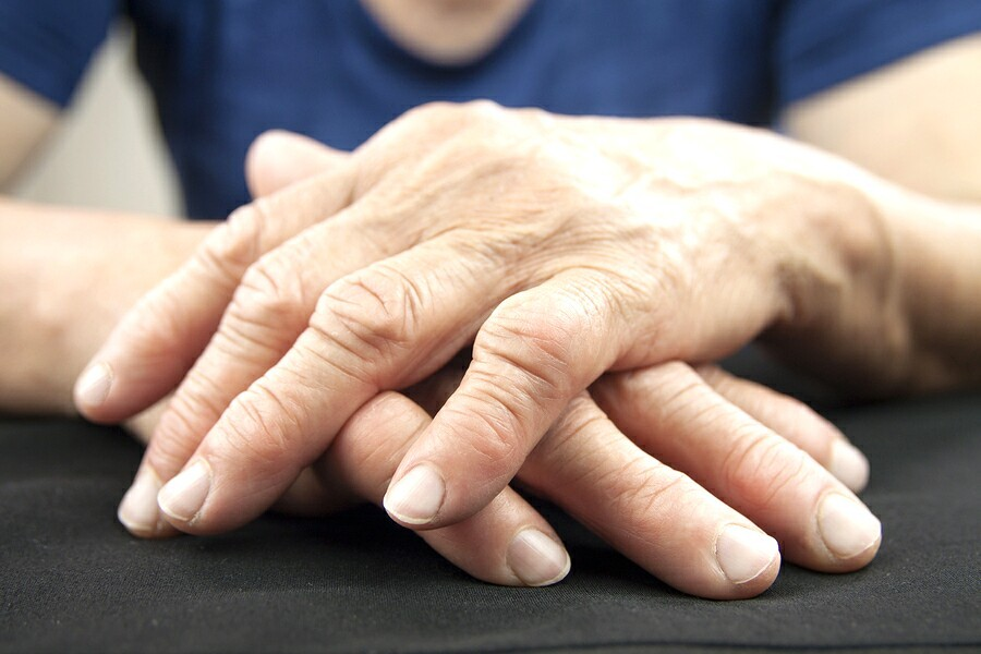 Arthritis: Homeopathic Treatment 3