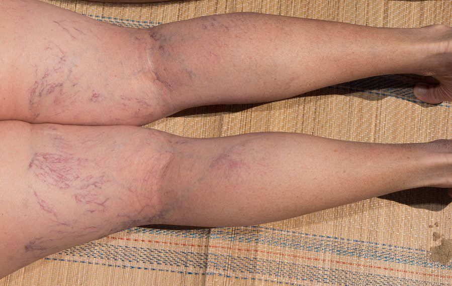 Remedies for Varicose Veins 2