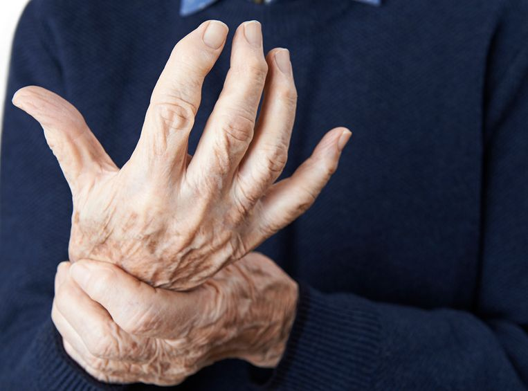 Homeopathic Help for Arthritis 7
