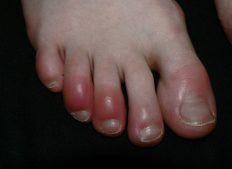Homeopathy for Chilblains 9