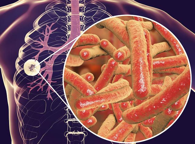 TB-Affected Patients Improve 10