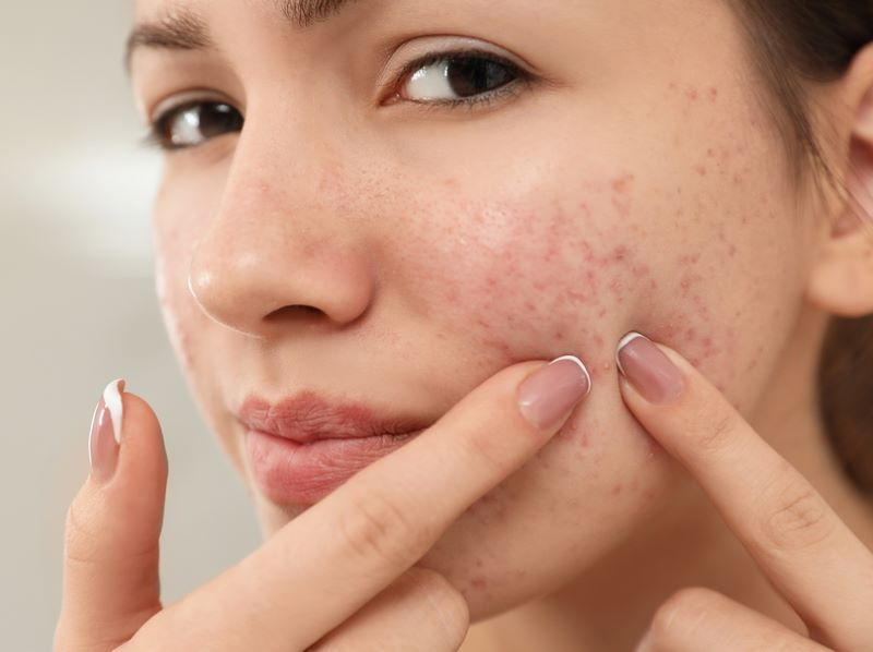 Homeopathy for Acne 1