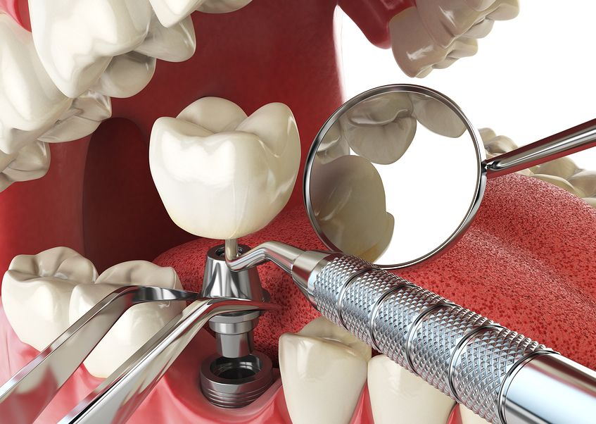 Study: Dental Implant Surgery 1