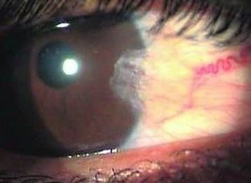 Remedy for a Case of Pterygium 1