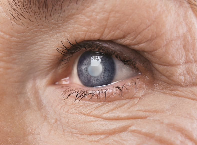 Remedies for Glaucoma 10
