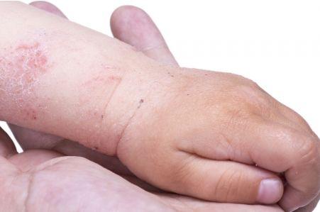 Case Presentations: Pediatric Atopic Dermatitis 4