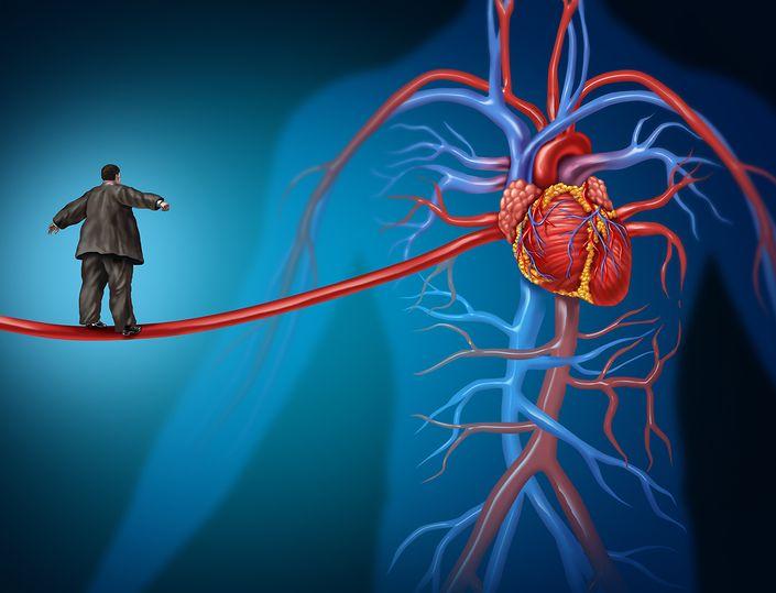 High Blood Pressure Remedies 1
