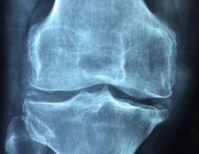 A Case of Knee Pain Treated Homeopathically 3