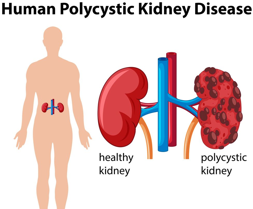 Homeopathy for Polycystic Kidney Disease 1