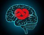 Epilepsy Remedies 5