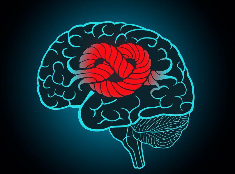 Epilepsy Remedies 3