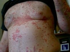 Case: A Psoriasis Remedy 2