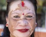 Why Homeopathy for Vitiligo? 3
