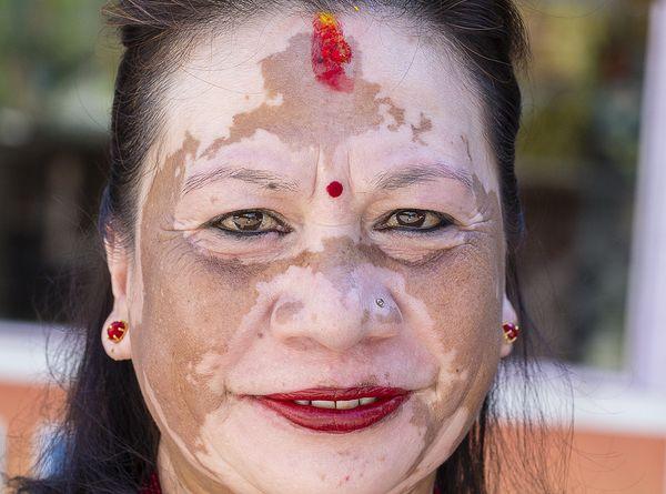 Why Homeopathy for Vitiligo? 1