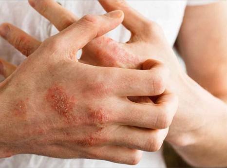 Homeopathy for Eczema 3