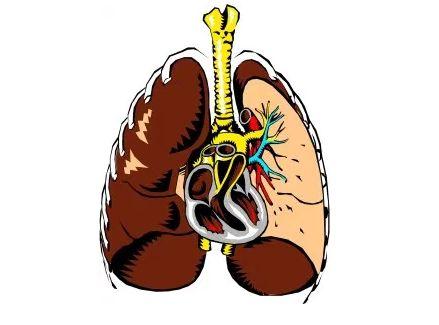 Pneumonia & Homeopathy 5