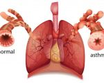 Homeopathy and Asthma 8