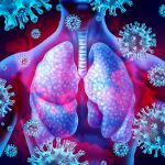 Lung Infection with Pneumonia (Viral)