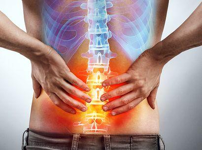 Remedies for Sciatica 5