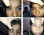 Case: Allergic Conjunctivitis 3