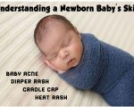 Homeopathy for Infant Skin 3