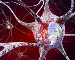 Homeopathy for Parkinson's 5