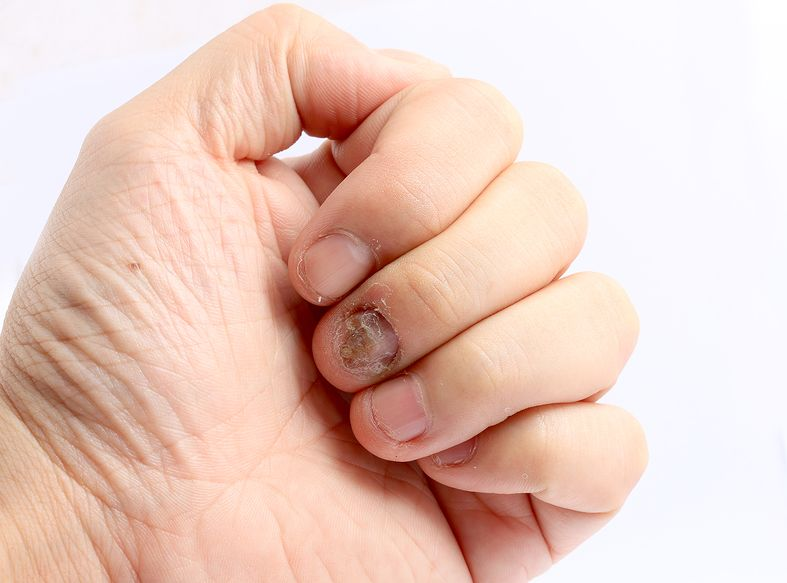 Management of Nail Disorders 4