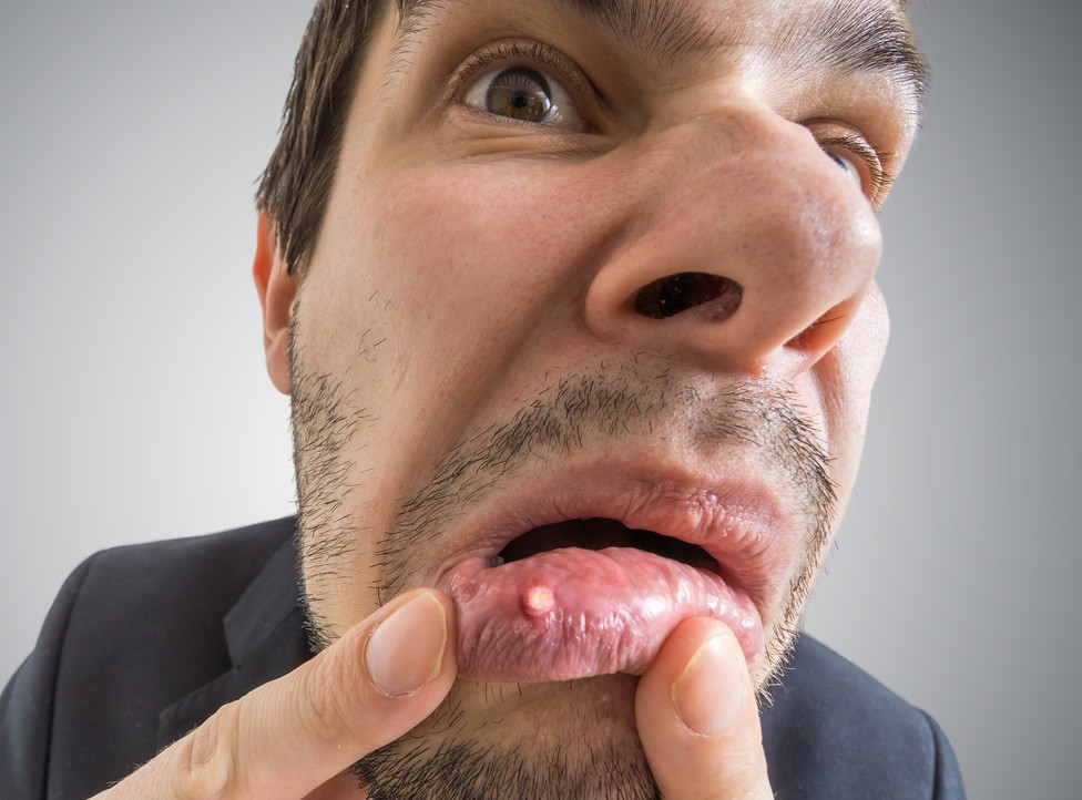 Remedies for Mouth Ulcers 4