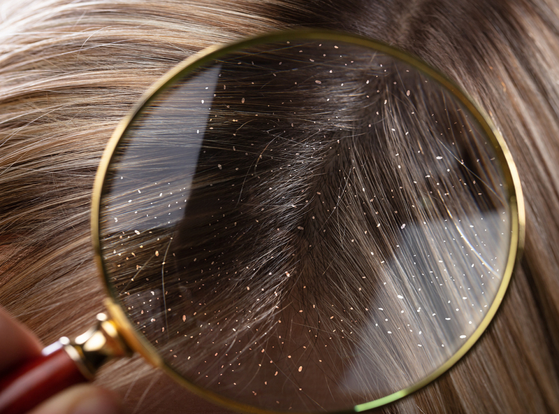 Dandruff – Myths, Facts and Homeopathy 3
