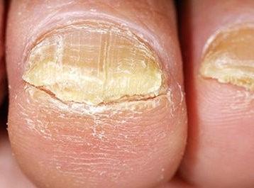Homeopathy for Nail Fungus 1